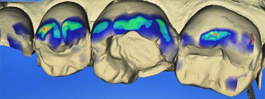 Plateforme de CFAO dentaire - faculté de chirrugie dentaire de Paris Descartes